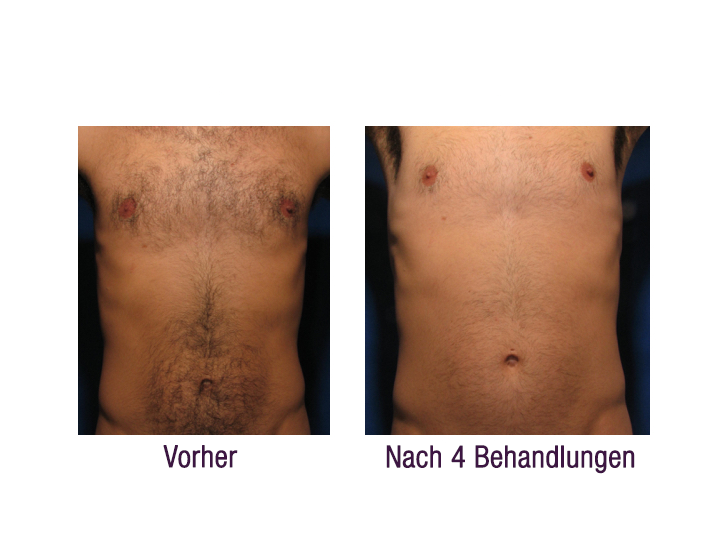 elase-before-after-clinical-results-001